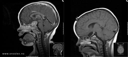 svulst i lillehjernen symptomer