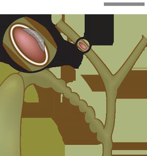 Kreft i galleblæren med spredning til lever