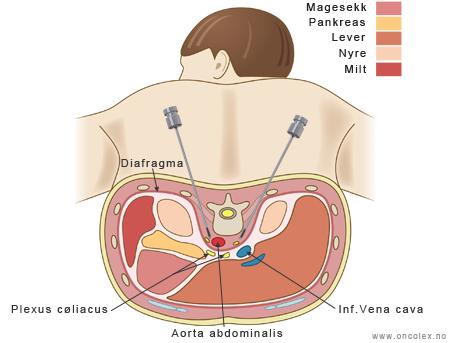 symptomer på kreft i bukspyttkjertelen
